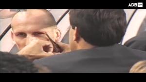 连队医都在手抖!斯塔姆2000年欧洲杯现场缝针面不改色